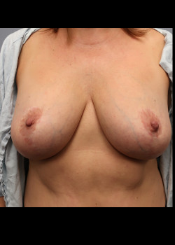 Breast Implant Removal with Total Capsulectomy